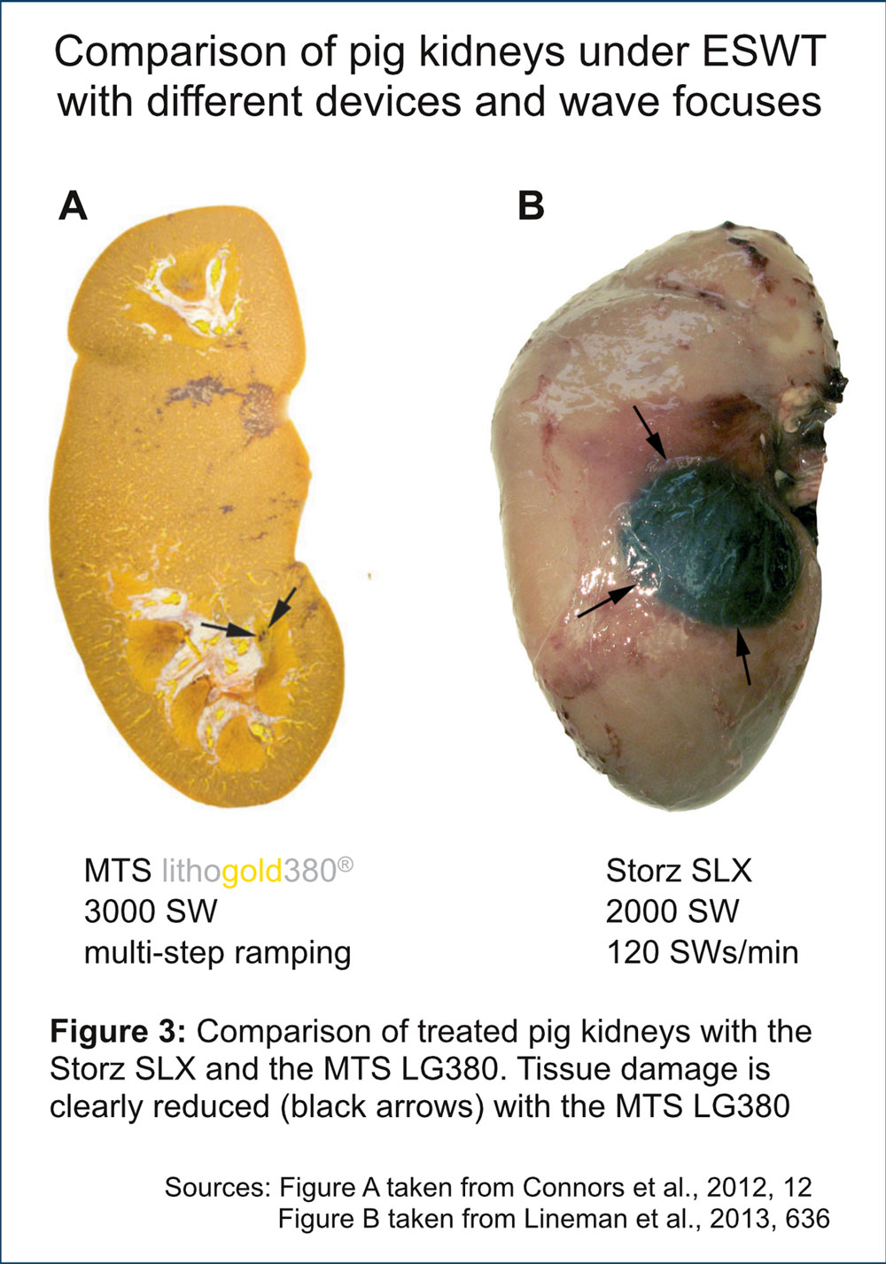 Fig3_Litho-Box_focus-Kidney_SLX-v-LG380-Seite001